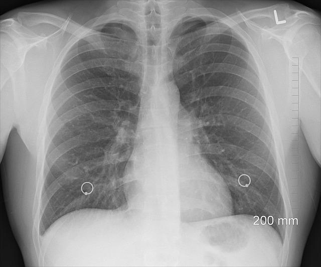 Rak płuca - cichy zabójca