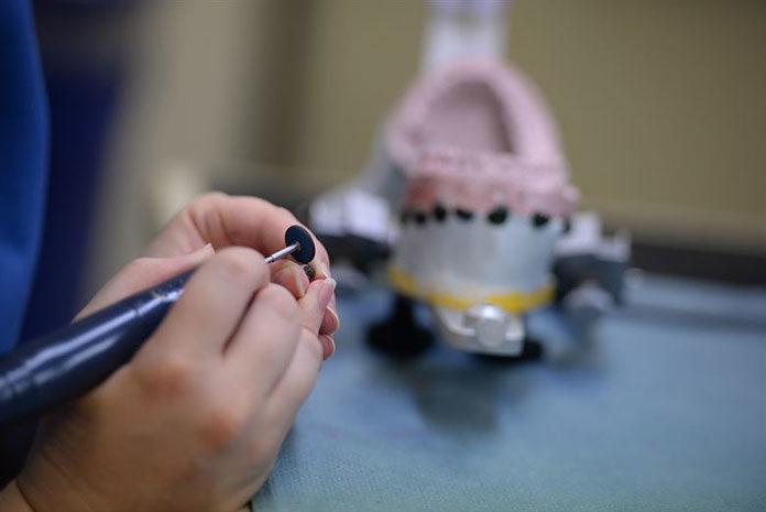 Jak przebiega zakładanie implantów stomatologicznych?
