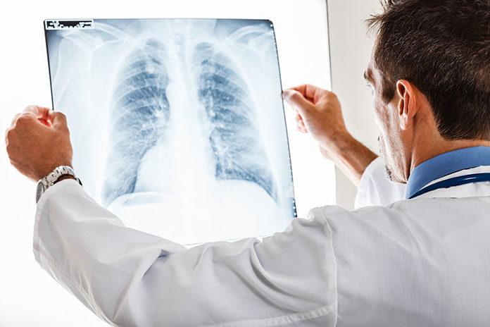 Różnice i podobieństwa w leczeniu zapalenia oskrzeli i zapalenia płuc